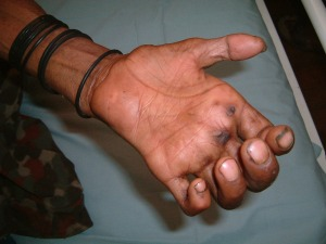 Can Leprosy cause this?